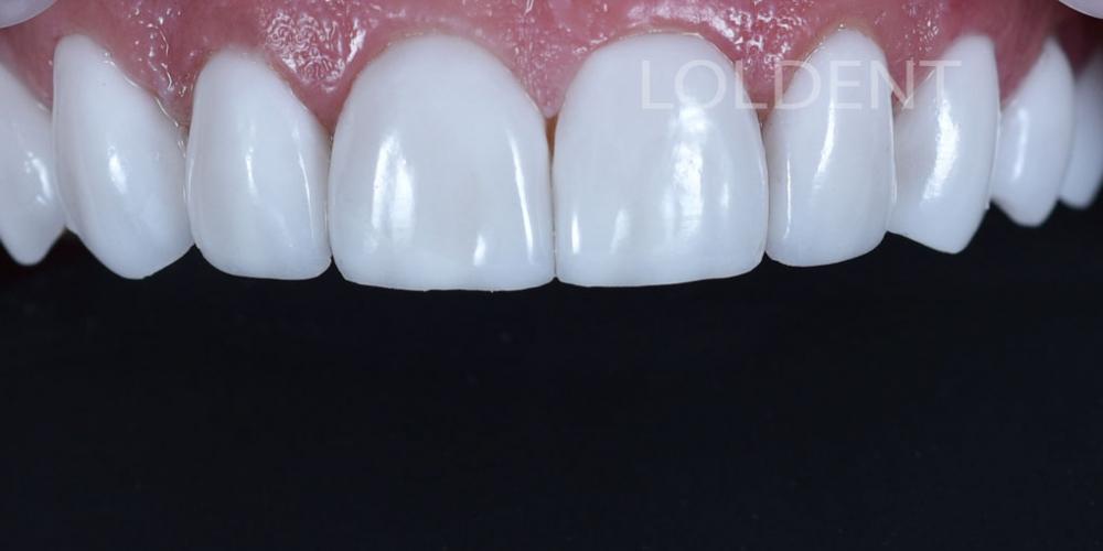 Результат преобразование улыбки керамическими винирами