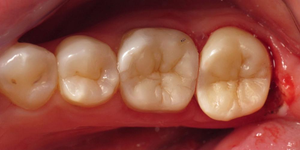 Фото после лечения и реставрации. Задача спасти зуб, все шаги реставрации на фото