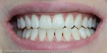 Профессиональное отбеливание зубов Beyond Polus фото после лечения