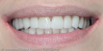 Реставрация улыбки винирами фото после лечения
