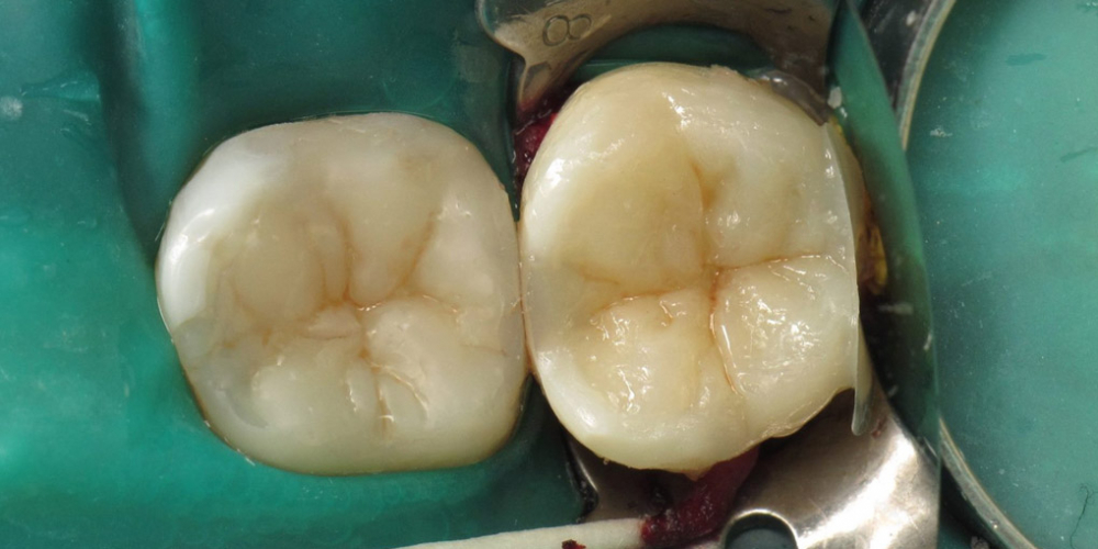 Реставрация жевательной поверхности в топографии дентина выполнена материалом Ceram X (Dentsply Sirona), эмали - Esthet-X. Задача спасти зуб, все шаги реставрации на фото