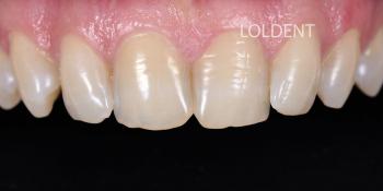 Результат преобразование улыбки керамическими винирами фото до лечения