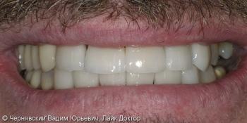 Реставрация зубов люминирами фото после лечения