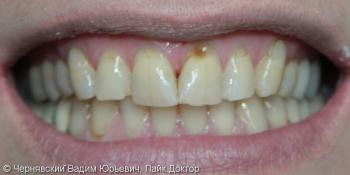Реставрация улыбки винирами фото до лечения
