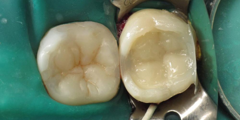 После установлена матрица Palodent Plus (Dentsply Sirona) и с помощью SDR (Dentsply Sirona) построена дистальная стенка зуба. Задача спасти зуб, все шаги реставрации на фото