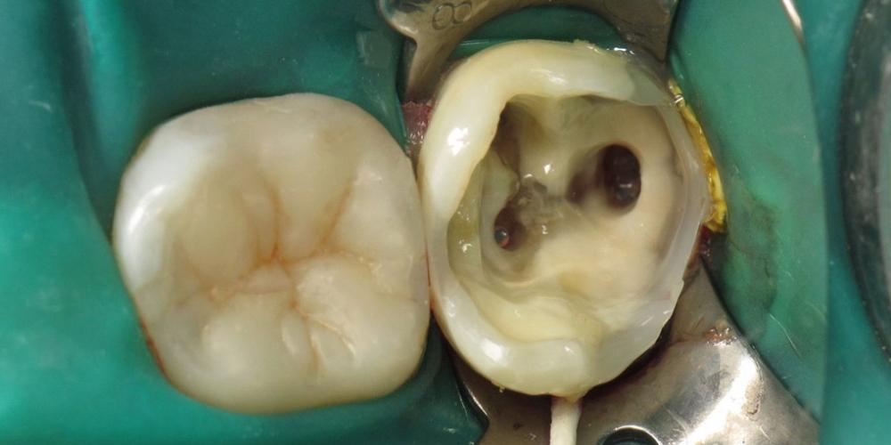 Последовательно восстановлены вестибулярная и лингвальная стенки материалом Esthet-X (Dentsply Sirona). Задача спасти зуб, все шаги реставрации на фото