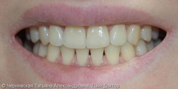 Профессиональное отбеливание зубов Beyond Polus фото до лечения