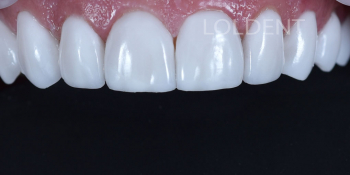 Результат преобразование улыбки керамическими винирами фото после лечения