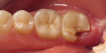 Задача спасти зуб, все шаги реставрации на фото фото до лечения